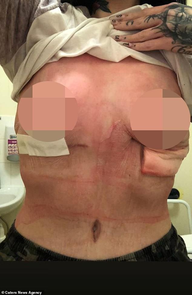 إمرأة تنشر صورها وتظهر ندوب شديدة في ثدييها بعد إجرائها جراحة تكبير فاشلة