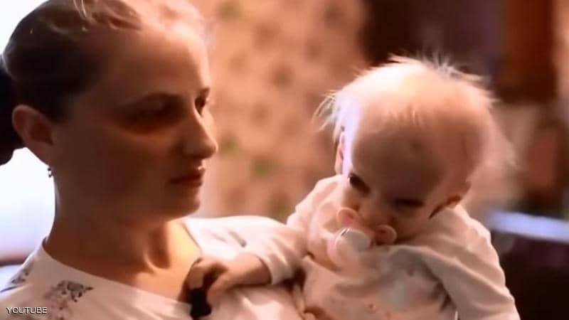 """وفاة """"الطفلة المسنة"""".. ولدت قبل 8 سنوات وعمرها 80 عاما"""
