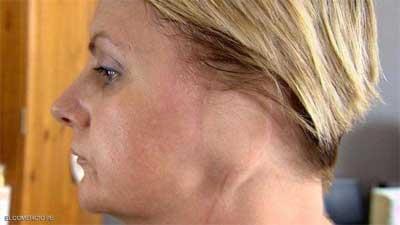 """""""امرأة بلا أذن"""" بعد سنوات والتشخيص الطبي خاطئ"""