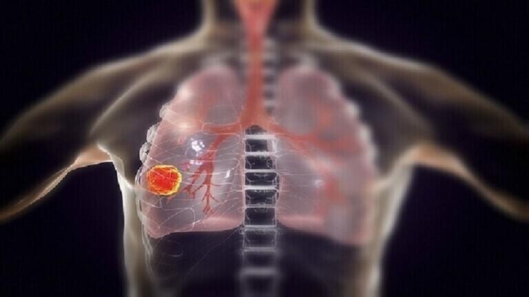 علماء أمريكيون يكشفون عن عضو أساسي يتلفه فيروس كو ر ونا بعد مهاجمة الرئتين!