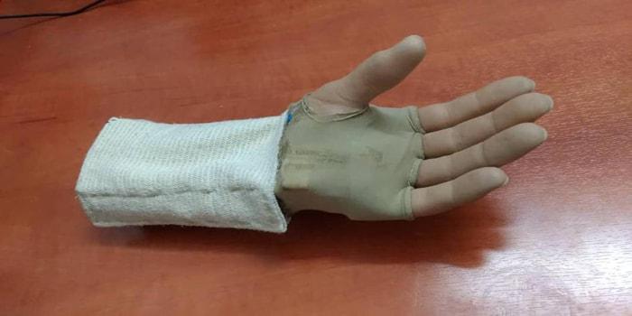 مخترعون شباب في اللاذقية يطورون نموذج أصابع إلكترونية الاختراع يعيد كفاءة الأصابع المبتورة